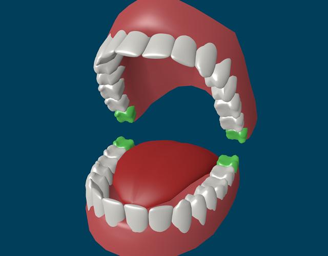 Зубы_мудрости