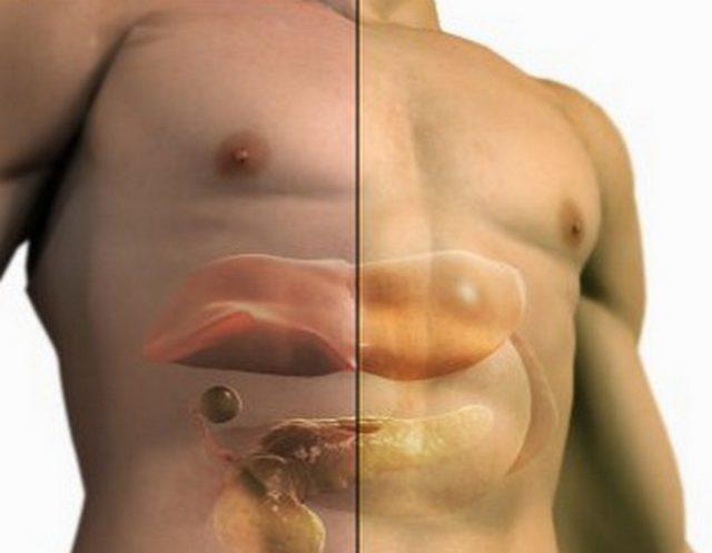 Как лечить гепатоз печени в домашних условиях быстро