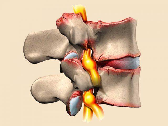 Нарушение мозгового кровообращения при остеохондрозе