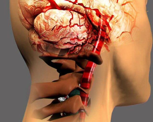 Лечение остеохондроза в Омске - Пресс-релизы